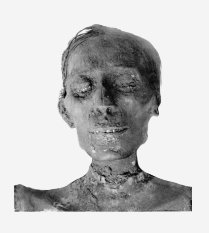 537px-Thutmosis_IV_mummy_head